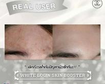 บูสเตอร์รกม้า Booster นวัตกรรมใหม่ล่าสุดจากประเทศเกาหลี