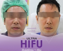 Promotion Hifu ยกกระชับหน้าเรียวเห็นผลชัดเจน ส่งท้ายปีที่ไดเมนชั่นคลินิก