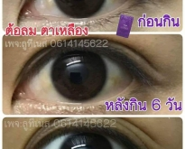 Luteines (ลูทีเนส) อาหารเสริมบำรุงดวงตา ป้องกันจอประสาทตาเสื่อม ต้อลม